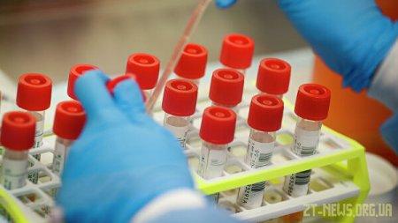 Щотижневий брифінг ОДА щодо ситуації по коронавірусу в Житомирській області