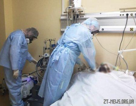 На Житомирщині зареєстровано ще два летальні випадки від коронавірусної інфекції